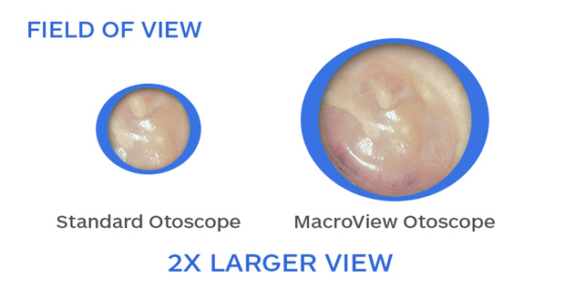 ear-mc-macroview-comparison
