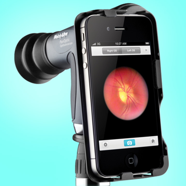 Ophthalmoscope View